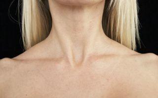 Расположение надключичных лимфоузлов, функции, заболевания