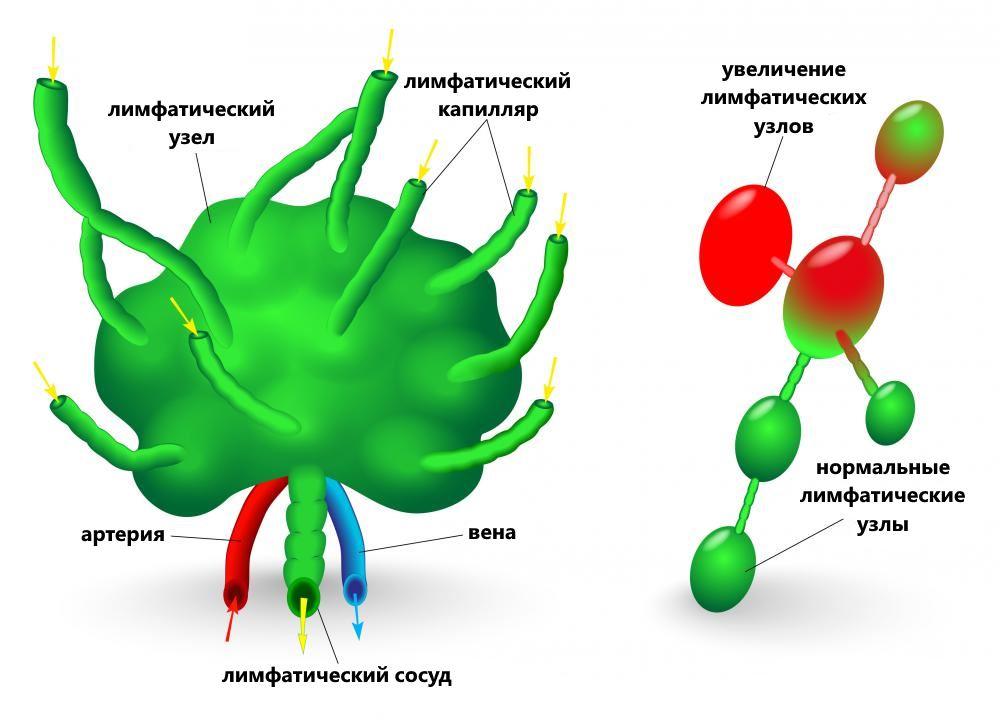 увеличение лимфатических узлов схема