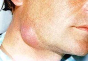 воспаление (лимфаденит)