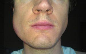 лимфоузлы под челюстью увеличены и опухли