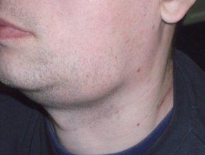 увеличение подчелюстных лимфоузлов слева