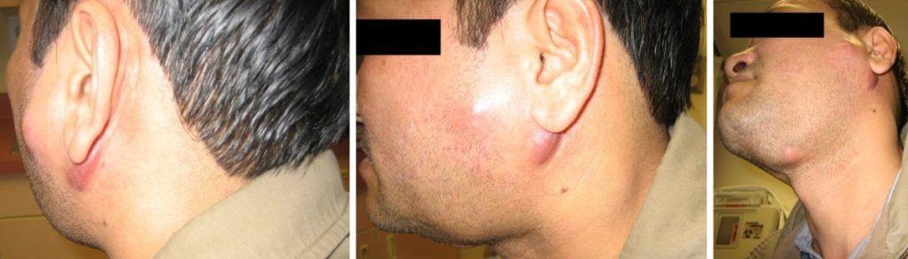 туберкулезный лимфаденит у мужчины