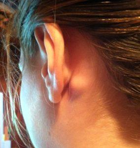 увеличенный лимфоузел за ухом