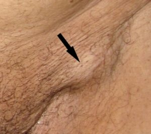 воспаление в паховой области у женщины